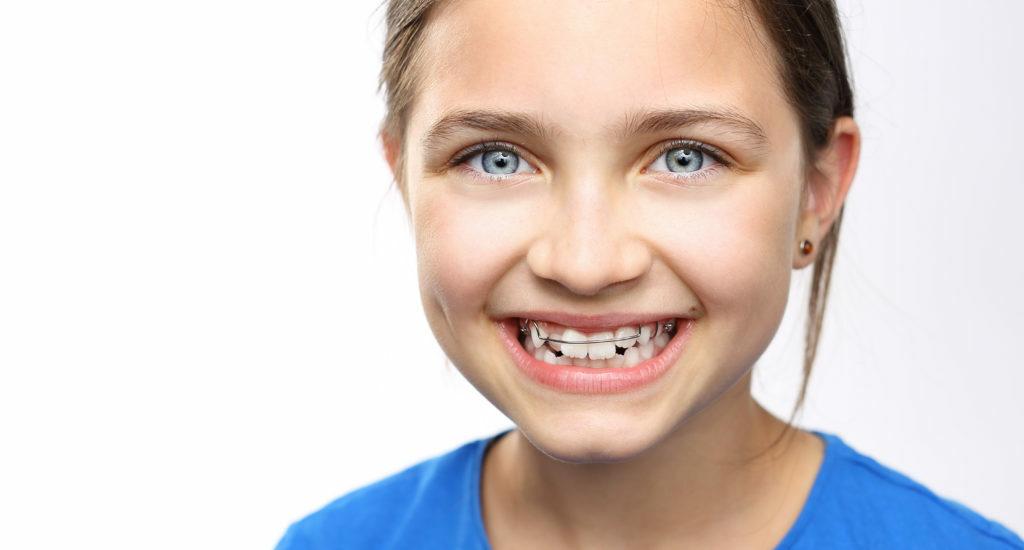 dentista-ortodoncia-dentist-Orthodontics-sotogrande-pueblo-nuevo-guadiaro